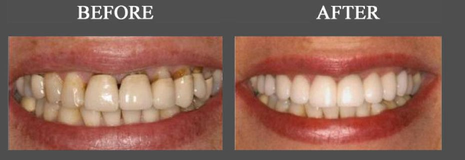 Before After | gums